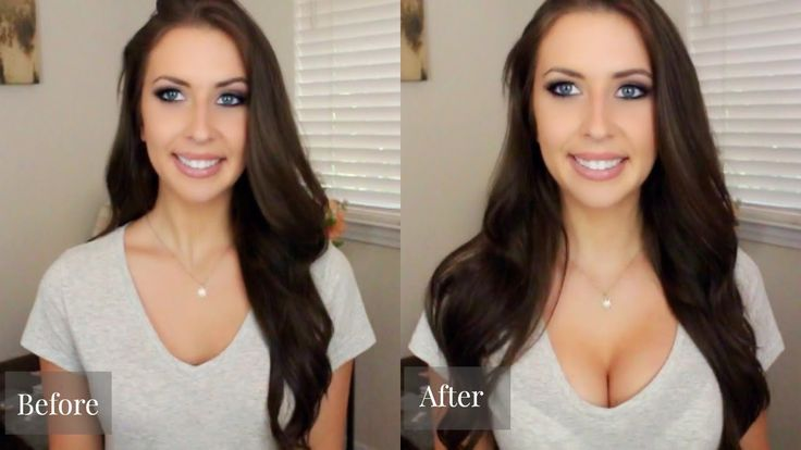 breast actives before and after 1 month